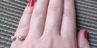 Sužadėtuvių žiedai puošia bevardžius pirštus